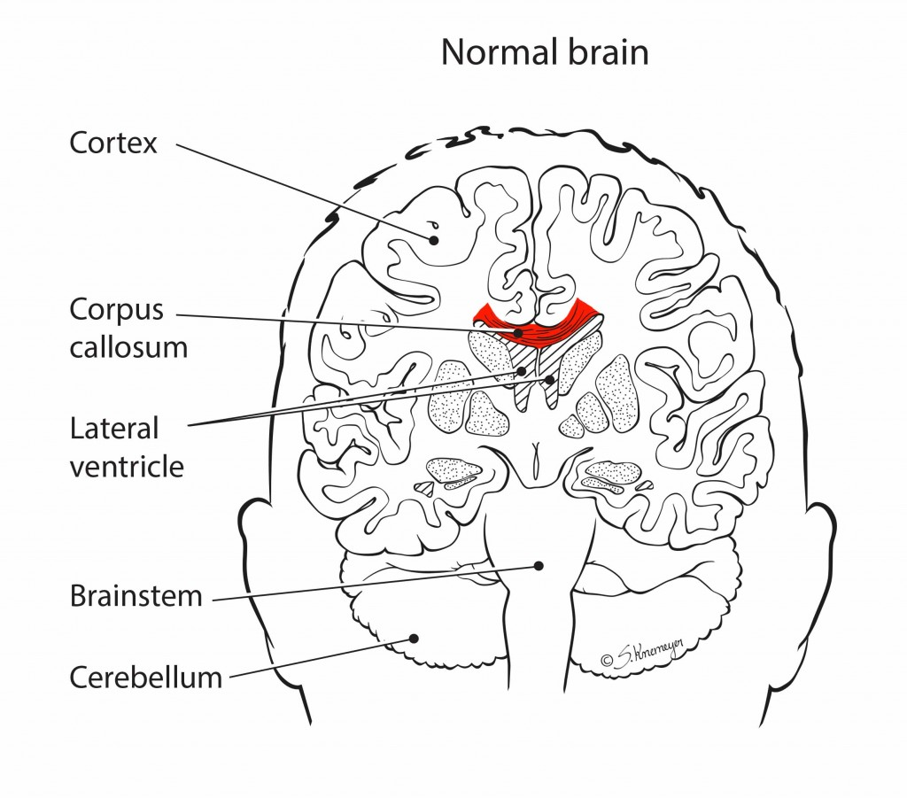 normal_corpus_callosum_labels